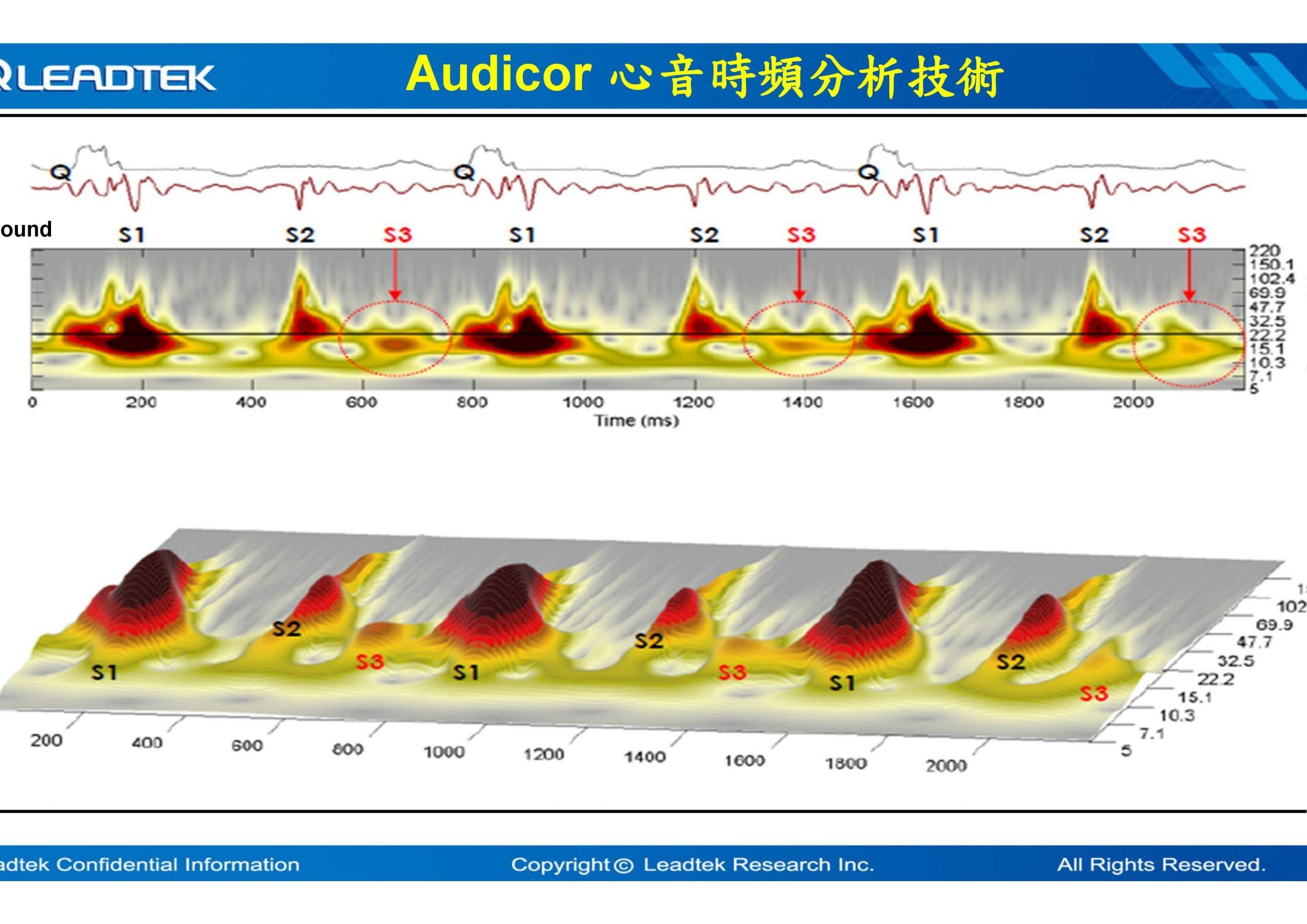 心電心音檢測2