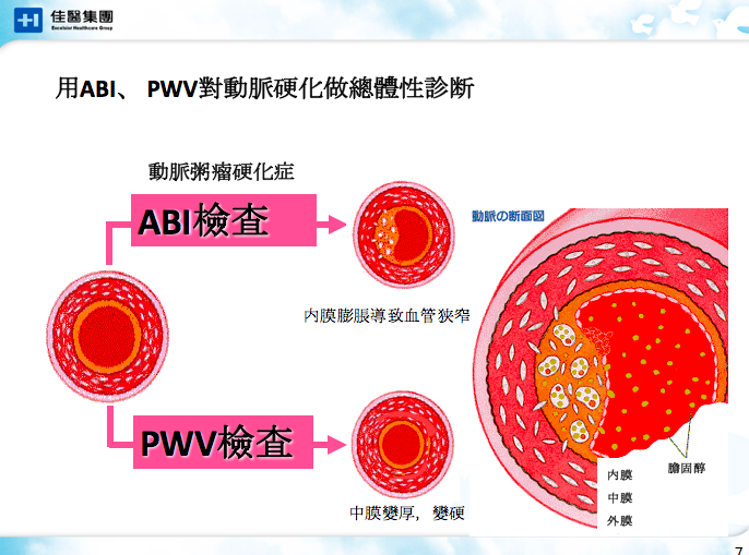 非侵入性動脈硬化檢查2